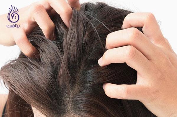 راز زیبایی موها- سرکه سیب برای از بین بردن شوره سر- برنافیت