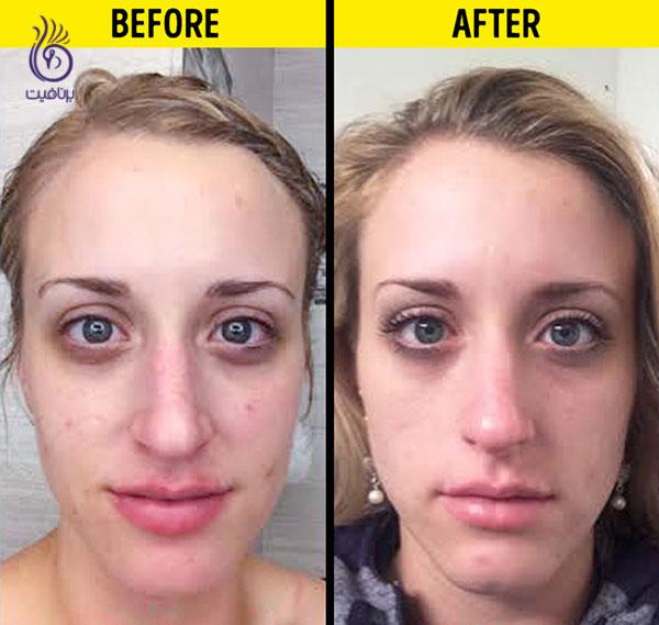 تاثیر نوشیدن آب بر روی ظاهر پوست- زیبایی- برنافیت