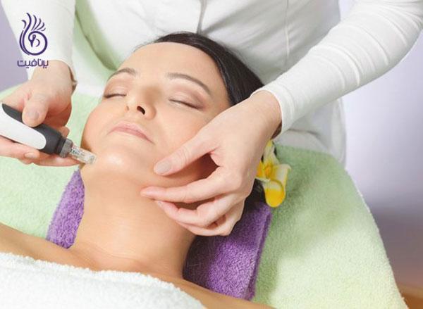 روشن شدن پوست- میکرونیدلینگ- برنافیت