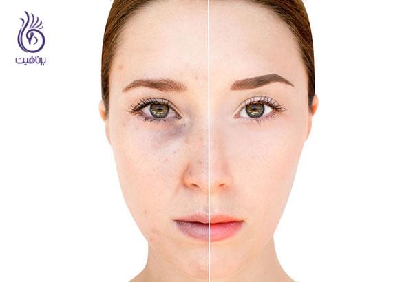 تاثیر خوابیدن با آرایش بر روی ظاهر پوست- زیبایی- برنافیت