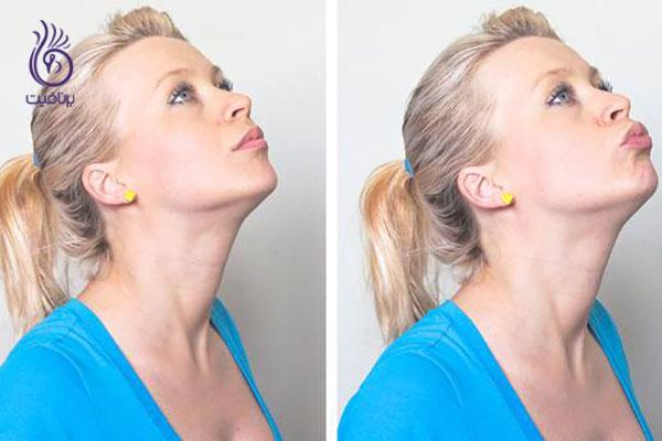 از بین بردن غبغب- ورزش های گردن- برنافیت