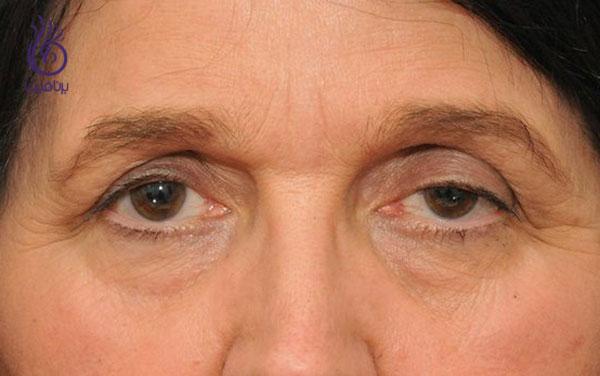 درمان افتادگی پلک با rf- زیبایی- برنافیت