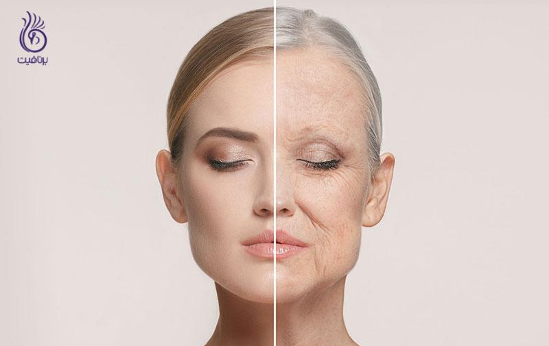 تاثیر عادت ها بر روی ظاهر پوست- زیبایی- برنافیت