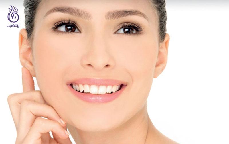روشن شدن پوست- زیبایی- برنافیت