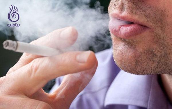 درمان ریزش مو- ترک سیگار- برنافیت