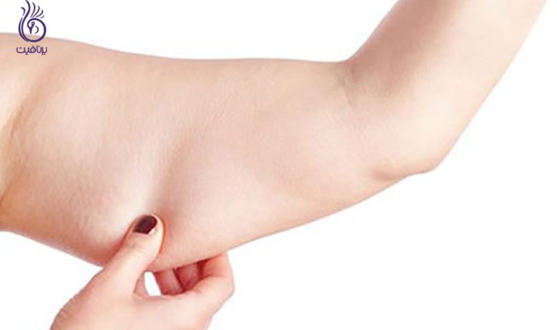 کاهش سایز بازو- سبک زندگی- برنافیت