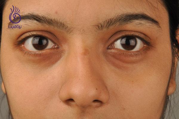 تیرگی دور چشم- درمان ها- برنافیت