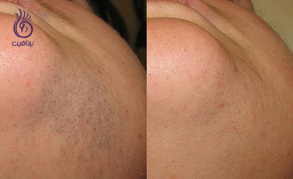 موهای زیر پوستی- لیزر- برنافیت