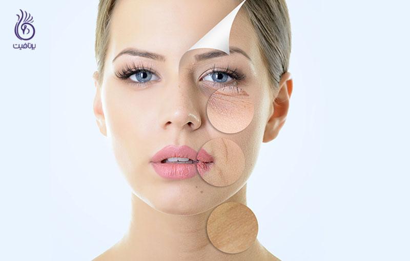 جوانسازی پوست- زیبایی- برنافیت