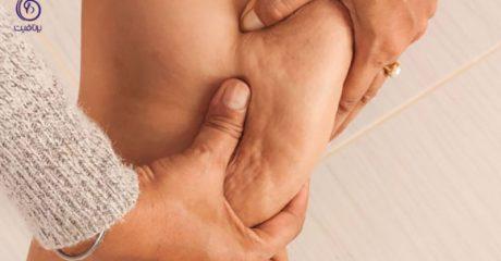 درمان سلولیت ران- برنافیت