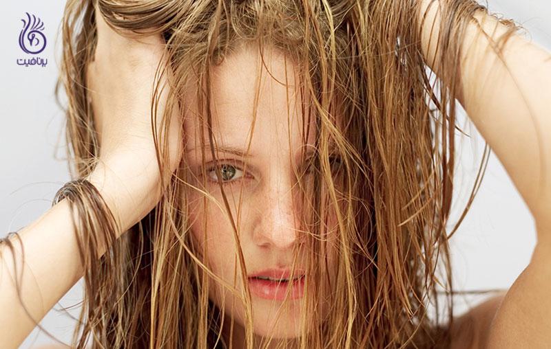 درمان موی چرب- برنافیت