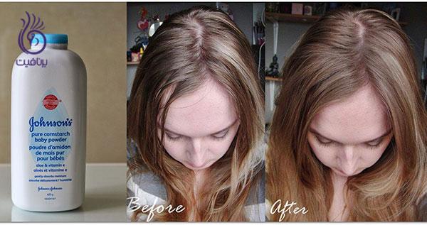 درمان موی چرب- پودر بچه- برنافیت