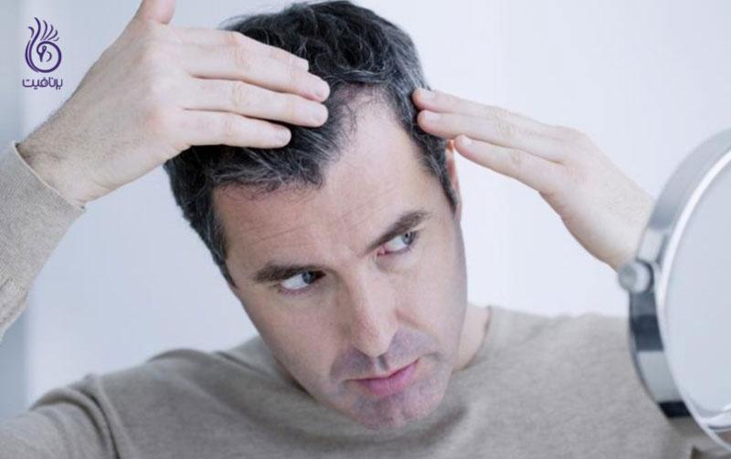 جلوگیری از سفید شدن مو- برنافیت