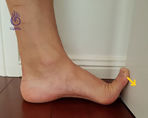 درمان کف پای صاف- big-toe-exercise- برنافیت