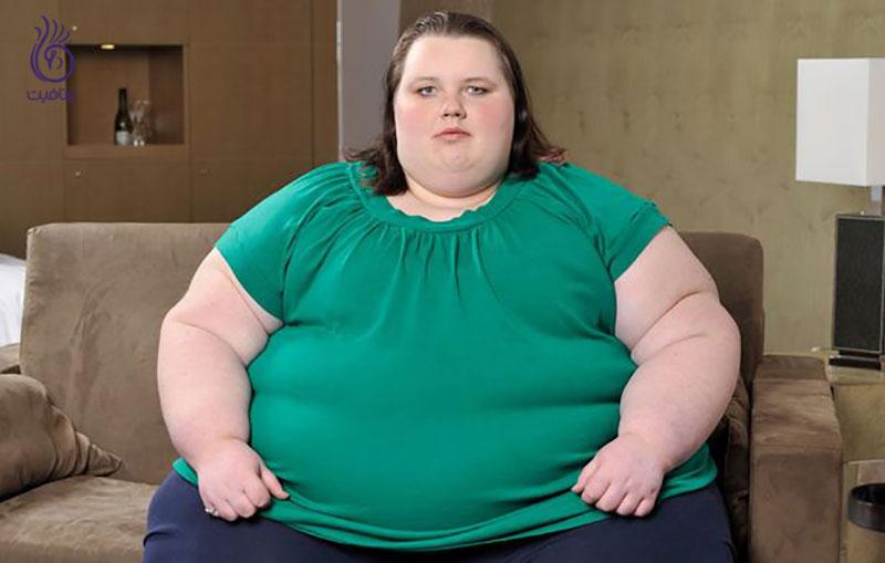 چاق شدن- برنافیت