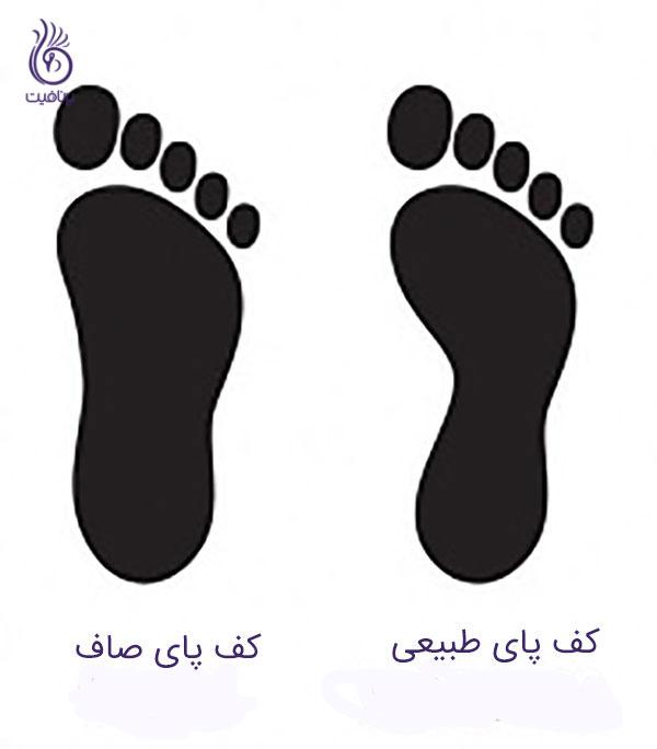درمان کف پای صاف- جای پا- برنافیت