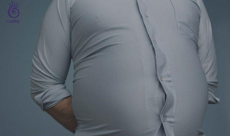 چاقی شکم- برنافیت