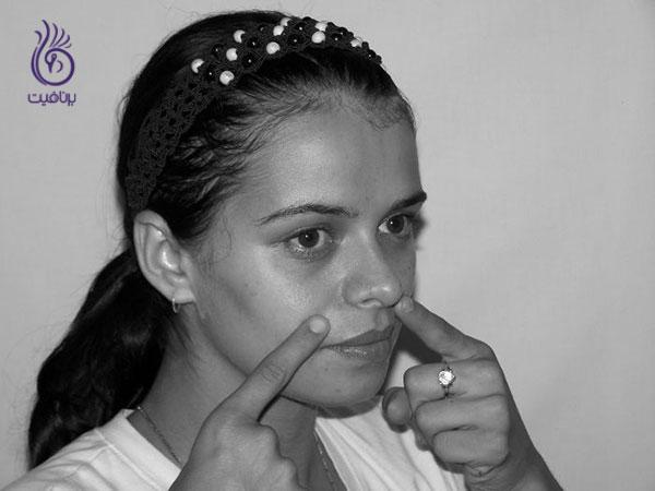 رفع خط خنده- ورزش صورت- برنافیت