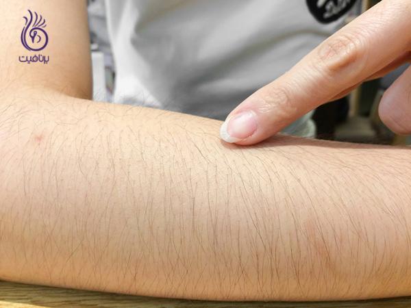 مو زائد- اختلالات غده آدرنال- برنافیت