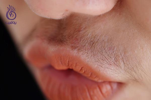 مو زائد- رشد غیر طبیعی بافت ها- برنافیت