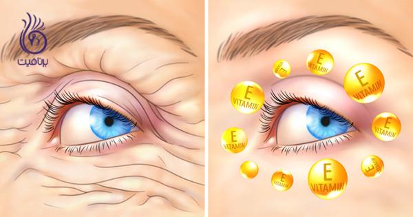 ضد چروک- ویتامین E- برنافیت