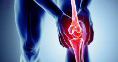 ورزش برای زانو درد