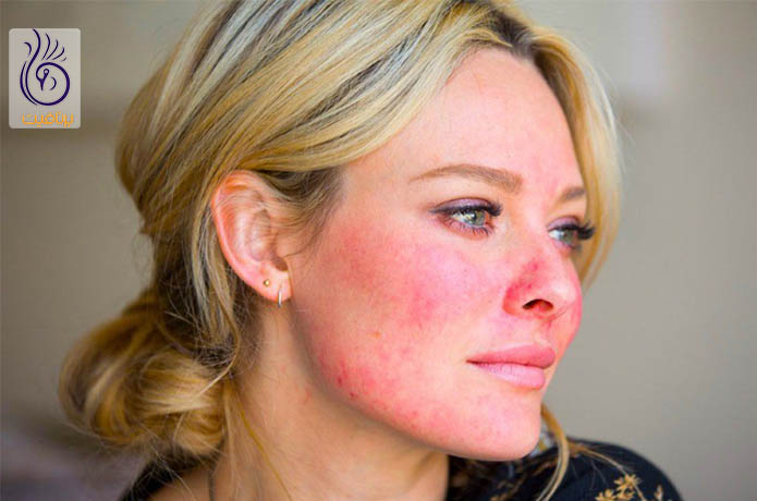 سوختن پوست بر اثر وکس
