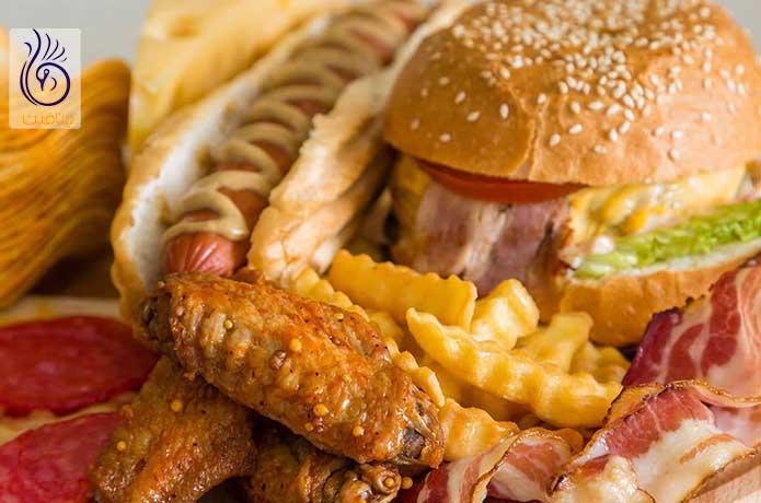 غذاهای چاق کننده - برنافیت دکتر کرمانی