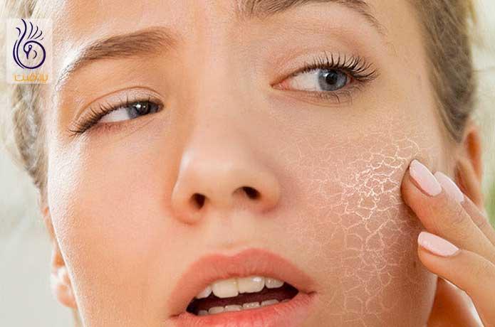 پوست دهیدراته - برنافیت دکتر کرمانی